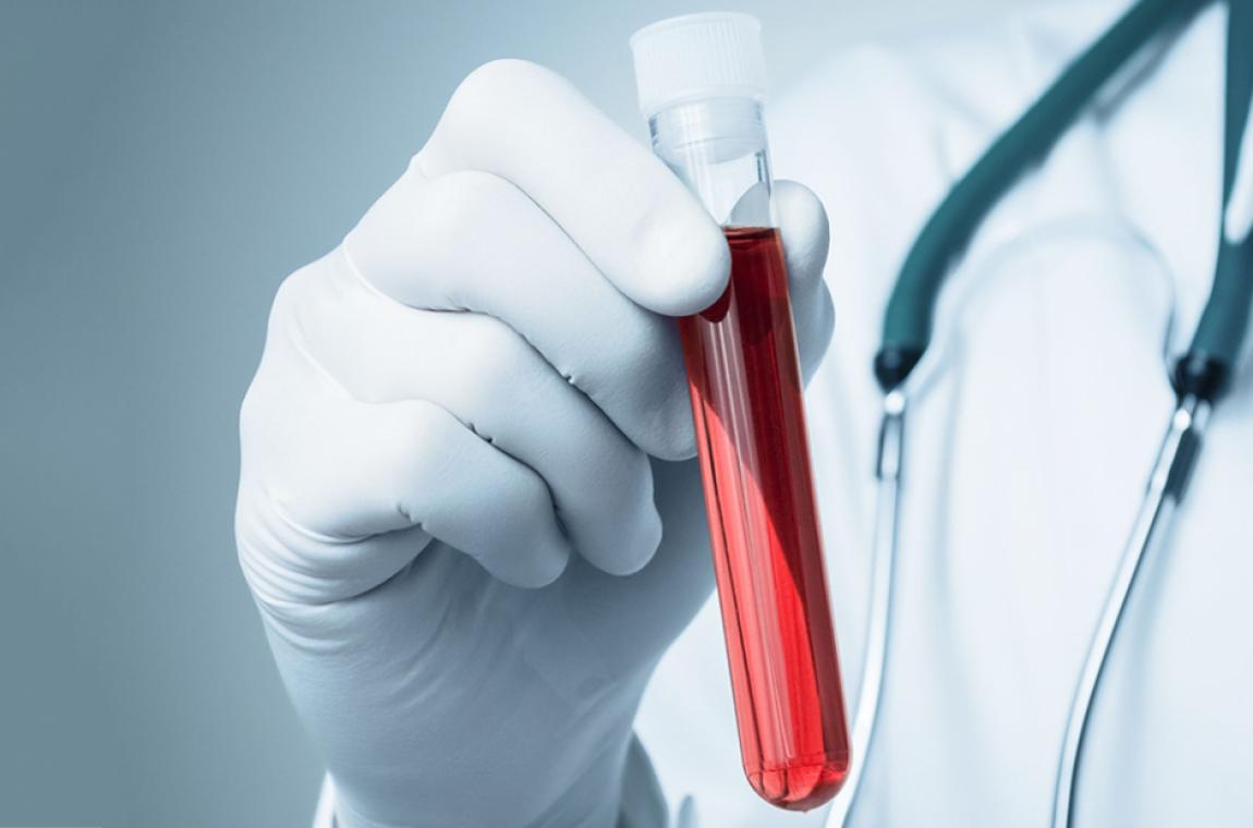 O que é e como funciona o exame de ureia e creatinina?
