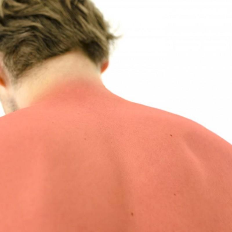 Queimadura de sol: como tratar?